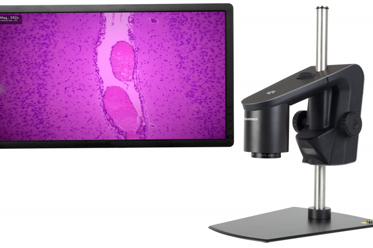 Take a closer look at VisionAid's highest magnification digital microscope